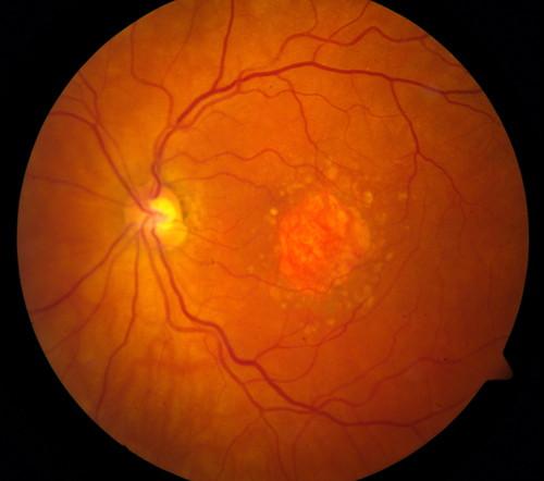 Degenerescenta maculară legată de vârstă | Novaoptic Suceava