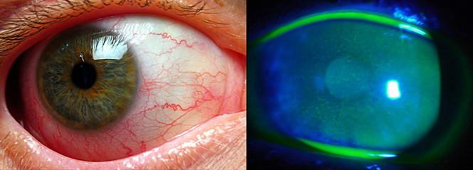 klumova 5 viziune nouă trata miopia ereditară